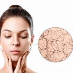 5 consejos para recuperar la piel dañada por el sol