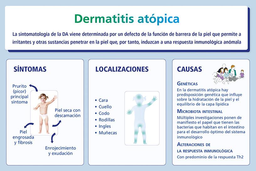 Dermatitis atópica: síntomas, localizaciones y causas