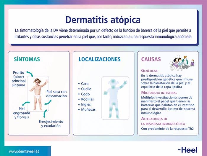 Dermatitis atópica. Causas y síntomas - HeelEspaña