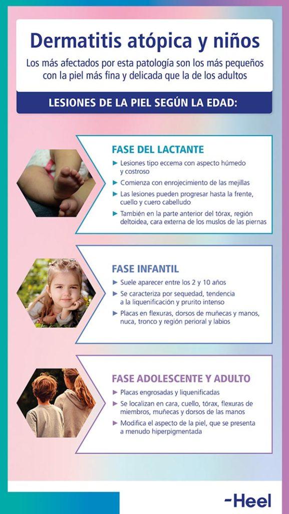 Dermatitis atópica y niños - HeelEspaña