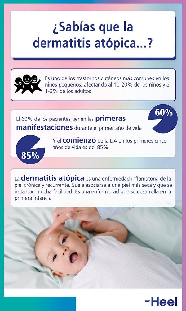 Dermatitis atópica: predomina en los niños - HeelEspaña