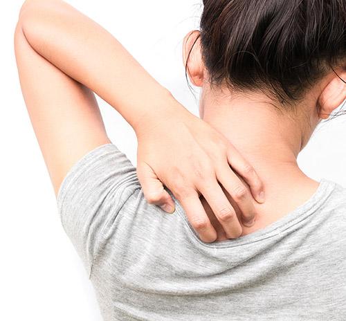 Qué es la dermatitis atópica, sus síntoma y nuevos tratamientos - HeelProbiotics - HeelEspaña