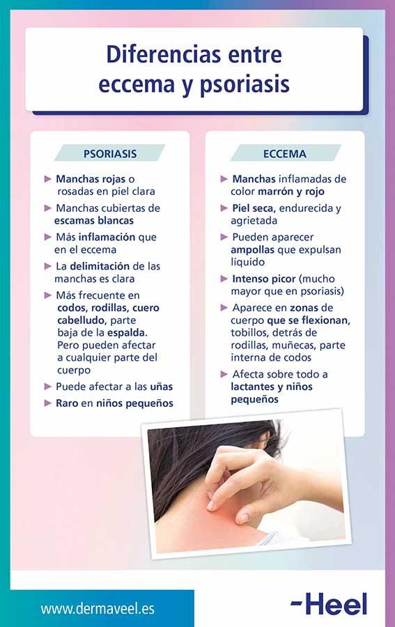 Conocemos la diferencia entre dermatitis y psoriasis - HeelEspaña