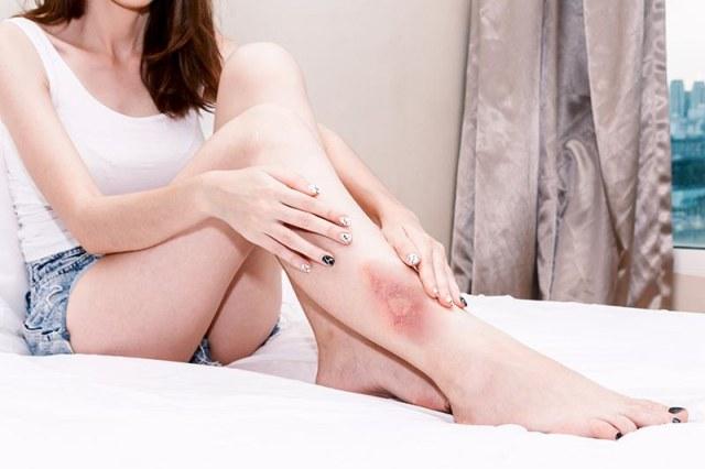 Qumaduras por depilación: ¿cómo aliviarlas? - HeelEspaña