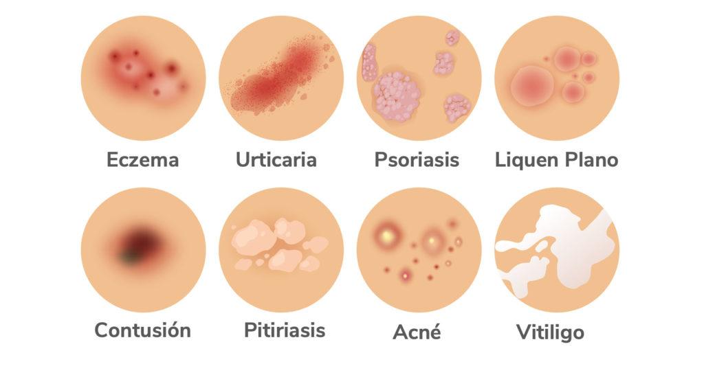 Dermatitis-Psoriasis-Eczema
