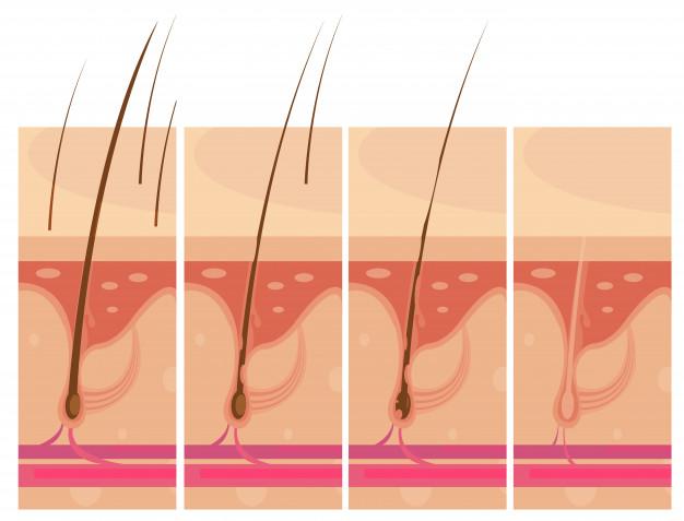 Tratamiento para la caída del pelo - HeelEspaña
