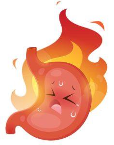 Digestiones pesadas en Navidad: cómo evitarlas: ardor estomago navidad heelespana 236x300 - HeelEspaña