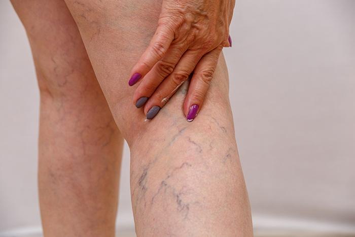 Varices y mala circulación sanguínea - HeelEspaña