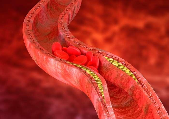 Consecuencias de la mala circulación sanguínea: mala circulacion sangre heelesoana - HeelEspaña