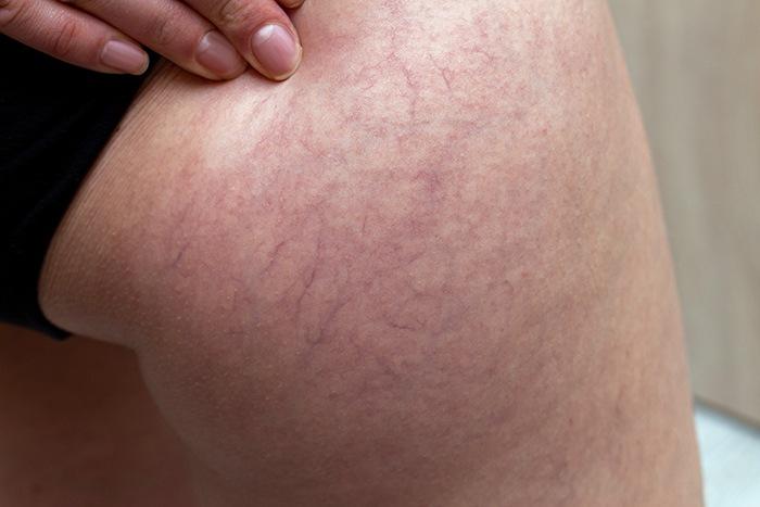 Varices: uno de los síntomas de la mala circulación en las piernas - HeelEspaña