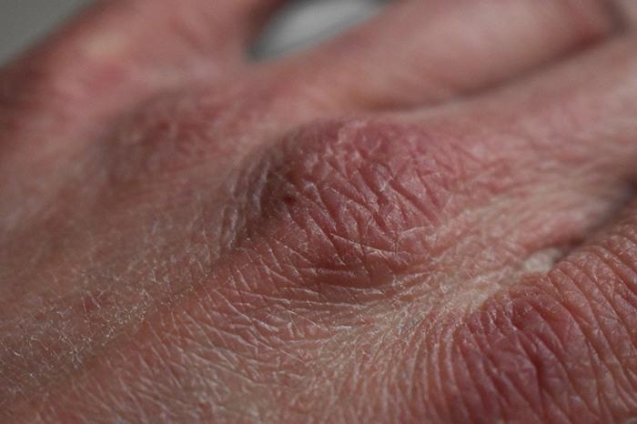 Soluciones para la sequedad en las manos - HeelEspaña