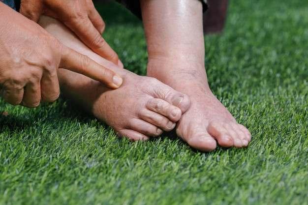 Combate la mala circulación y retención de líquidos en verano: pies hinchados - HeelEspaña
