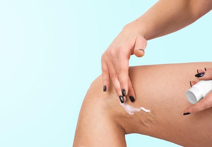 Mala circulación sanguínea y varices - HeelEspaña