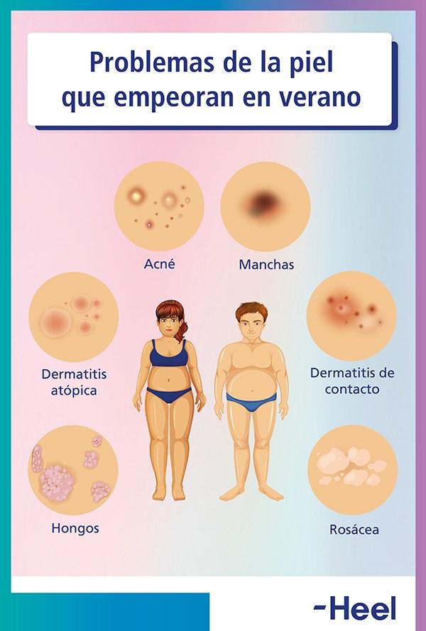 Inconvenientes del calor y la humedad en la piel