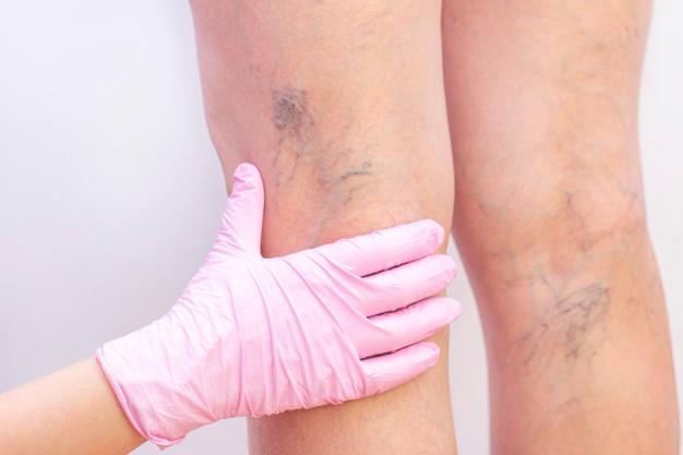 piernas varices