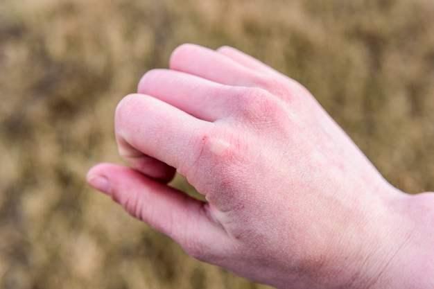Manos secas, ásperas o agrietadas   TIPs para una piel sana: piel seca mano - HeelEspaña