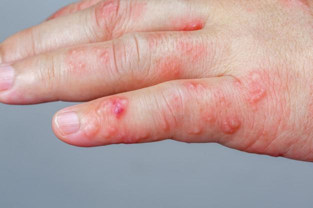 Piel seca con el frío | ¡Evita que las bajas temperaturas maltraten tu piel!: eritema infeccioso - HeelEspaña