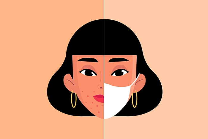 Alivia el maskné por el uso de mascarilla