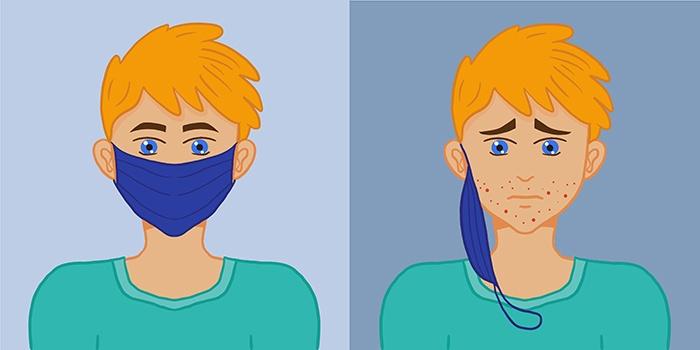 Higiene facial: evita el maskné por uso de mascarilla