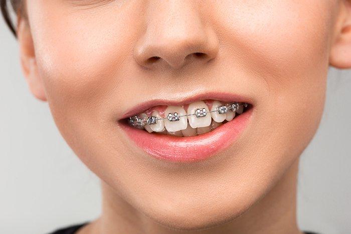 Los aparatos bucales provocan llagas en la boca