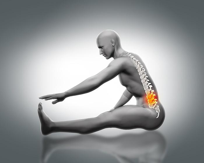 Por qué se produce el dolor de lumbares