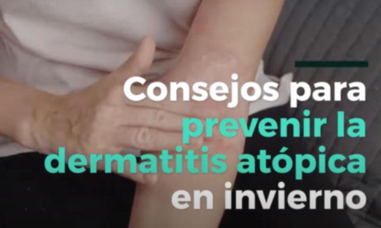 Prevenir la dermatitis atópica en invierno