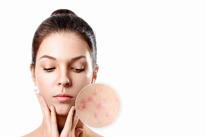 Cómo proteger tu piel con el uso de mascarilla