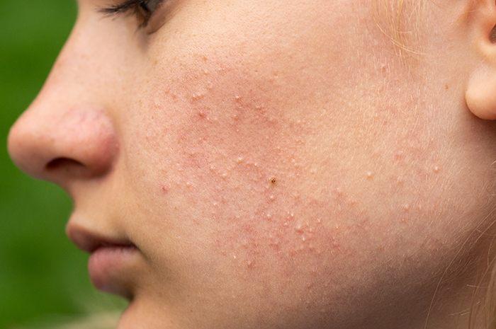 La dermatitis es uno de los problemas de la piel con el uso de mascarilla