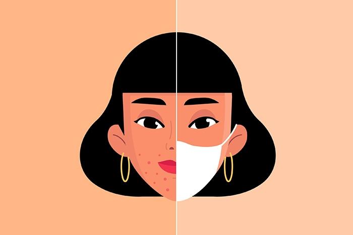 Irritación: problema de la piel con el uso de mascarilla