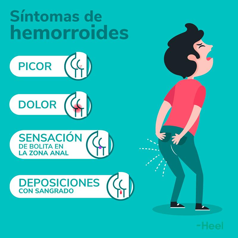 Hemorroides síntomas