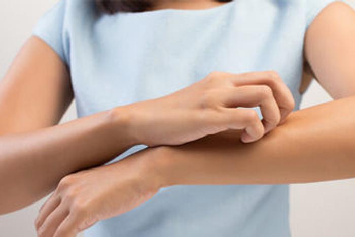 dermatitis en los brazos