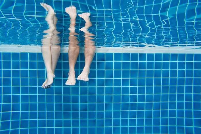 Medidas beneficiosas para cuidar las piernas hinchadas en verano