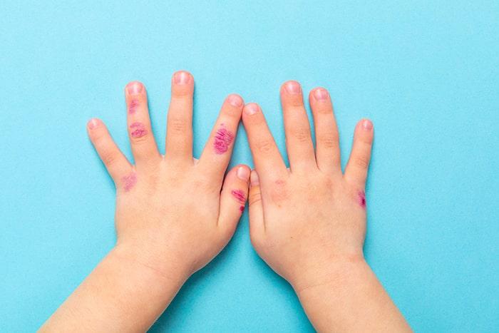 Cuidados de la dermatitis atópica en verano
