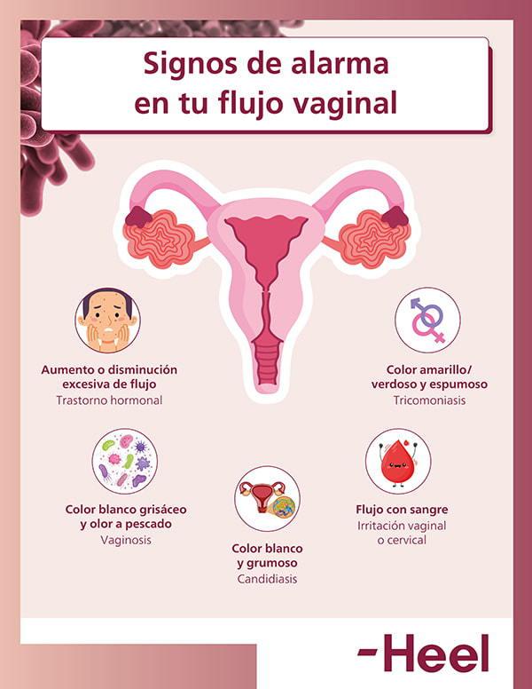 Signos de alarma en el flujo vaginal